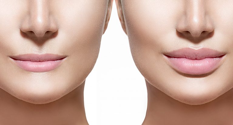 Non Surgical Chin Implant And Results