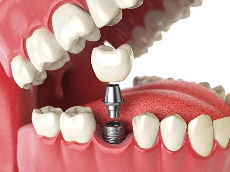 Dental Implant Maintenance For Health And Beauty