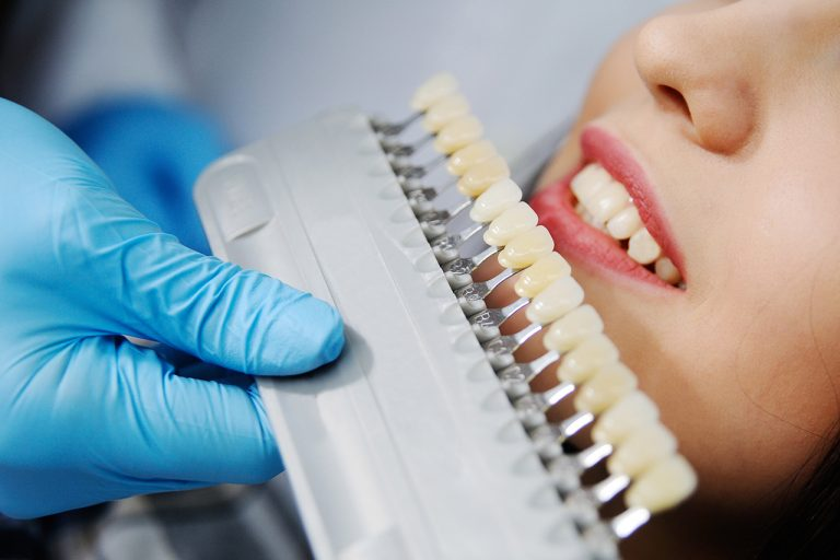 Details About Dental Implants On Front Teeth