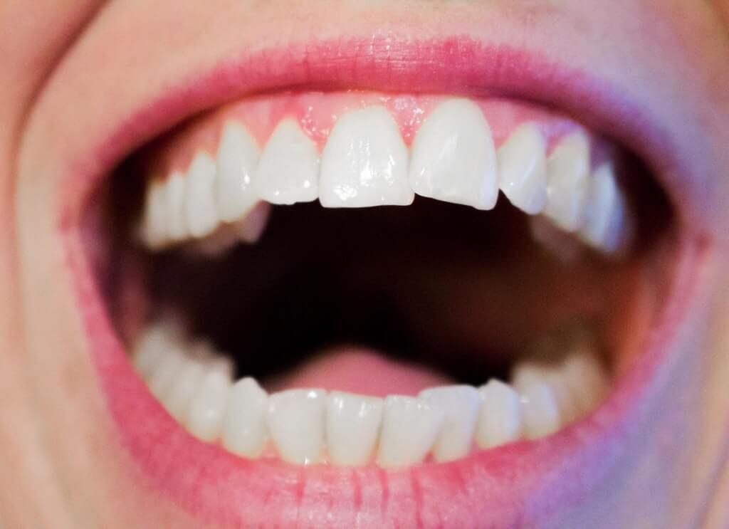 healthy oral care