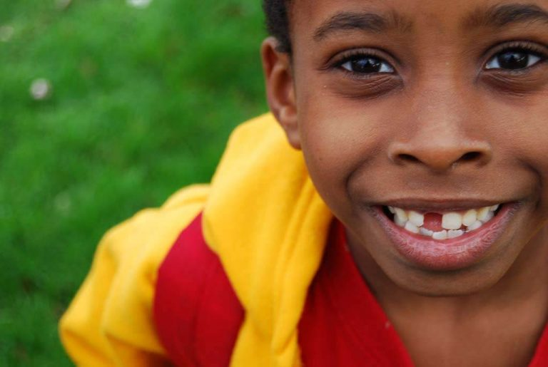 Tips To Avoid the Terrifying Dangers Of Tooth Loss