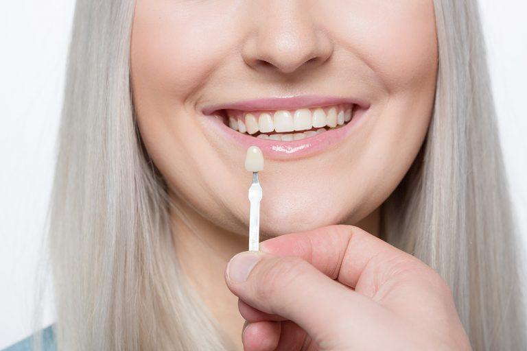 Veneer Teeth Pros and Cons