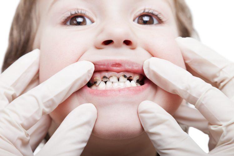 Children With Rotten Teeth
