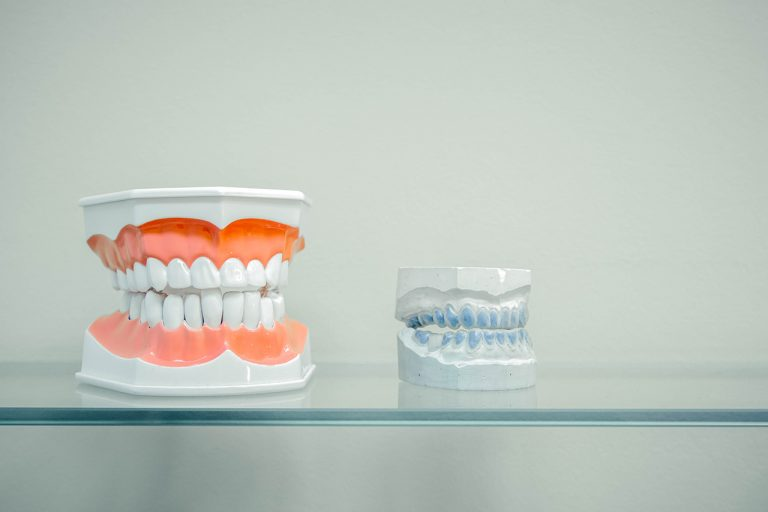 Discovering The Cost Of Periodontal Plastic Surgery