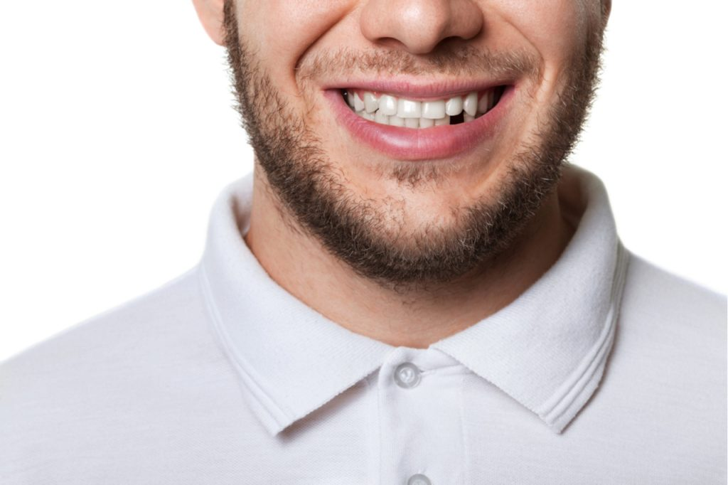 missing tooth replacement options