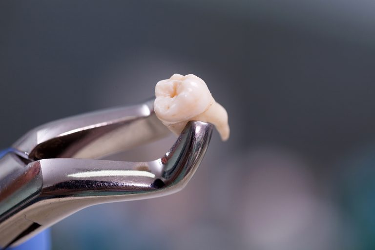 How Much Wisdom Teeth Extraction Cost