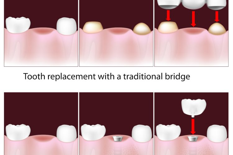 Dental Bridge Vs Implant
