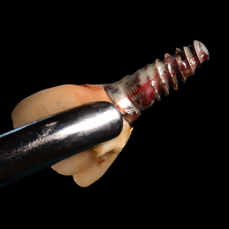 Dental Implant Complications