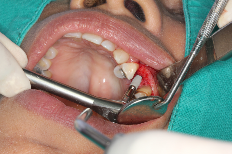 How To Prevent Dental Implant Failure