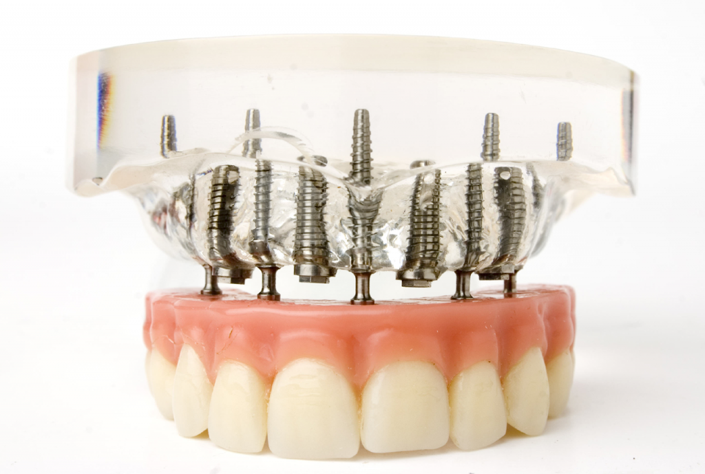 Dental Implants And Braces