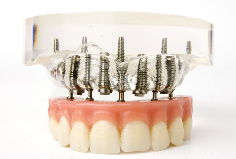 How To Achieve Optimal Timing For Dental Implants And Braces