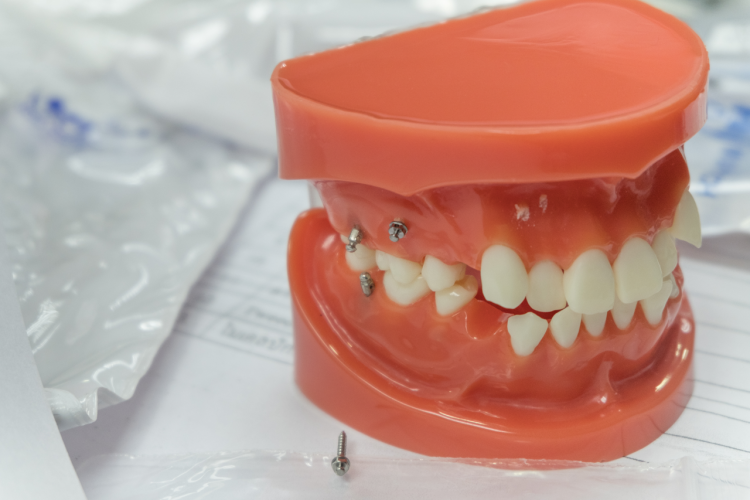 Dental Mini-Implants Success Rates