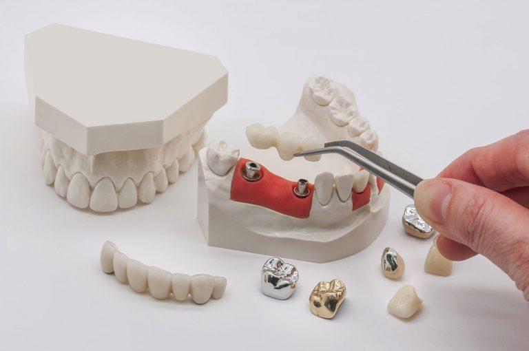 Zirconia Dental Implant
