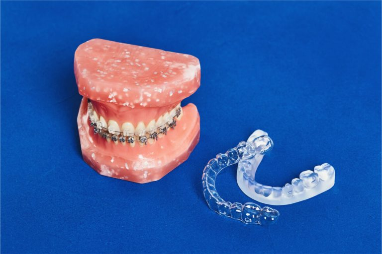 Comparing Clear Braces Cost vs Metal Braces Cost