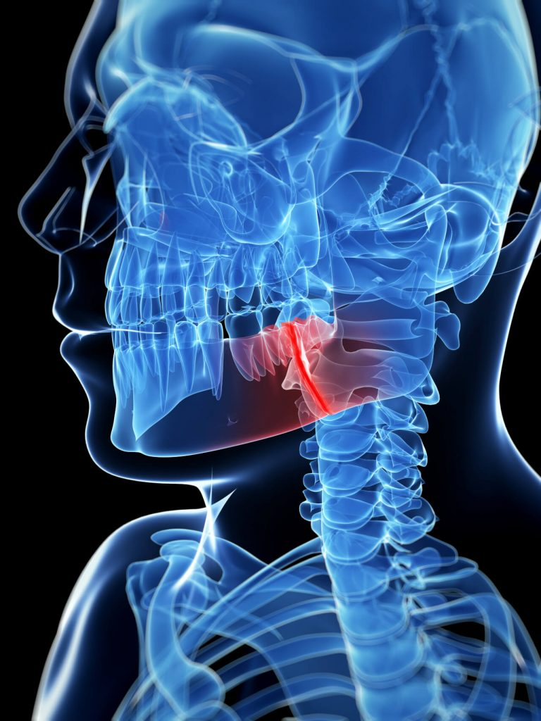The Beauty of Understanding About Jaw Fracture