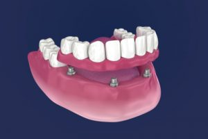 All On 4 Dental Implant Risks