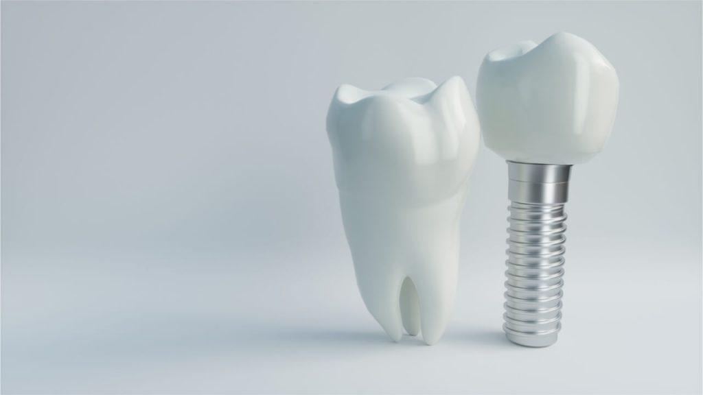 All On 4 Dental Implant Risks