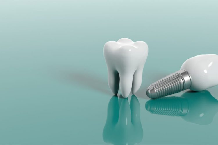 Can Dental Implants Make You Sick