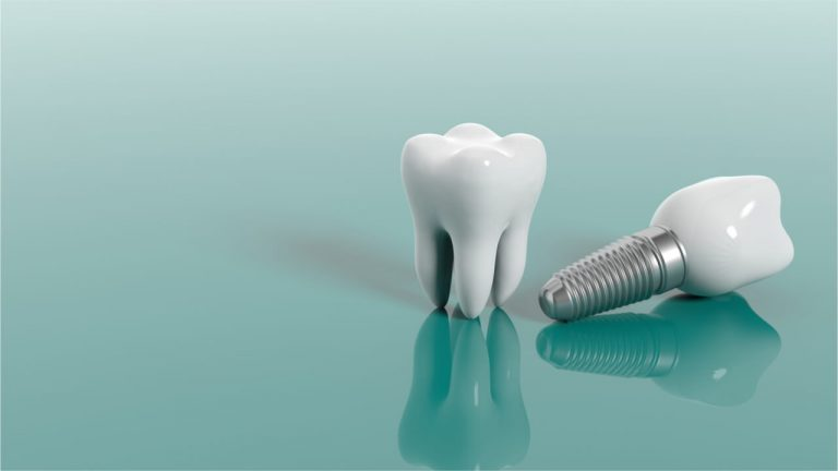 Can Dental Implants Make You Sick?