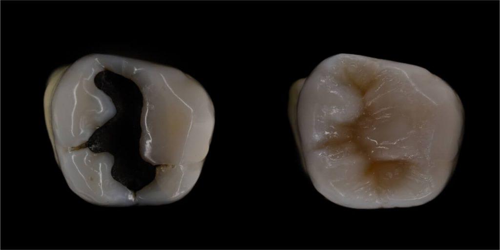 composite vs amalgam