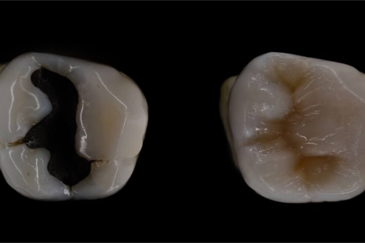 composite vs amalgam
