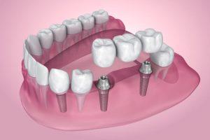 are dental implants safe