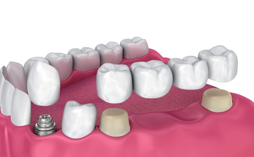 dental bridge problem