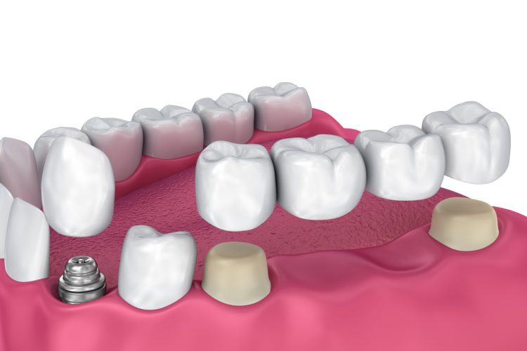 dental bridge problem
