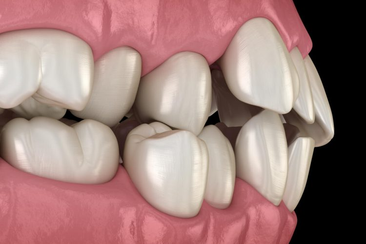 misaligned teeth
