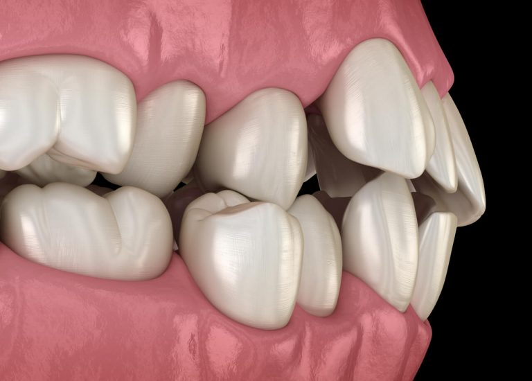Causes and Treatment of Misaligned Teeth