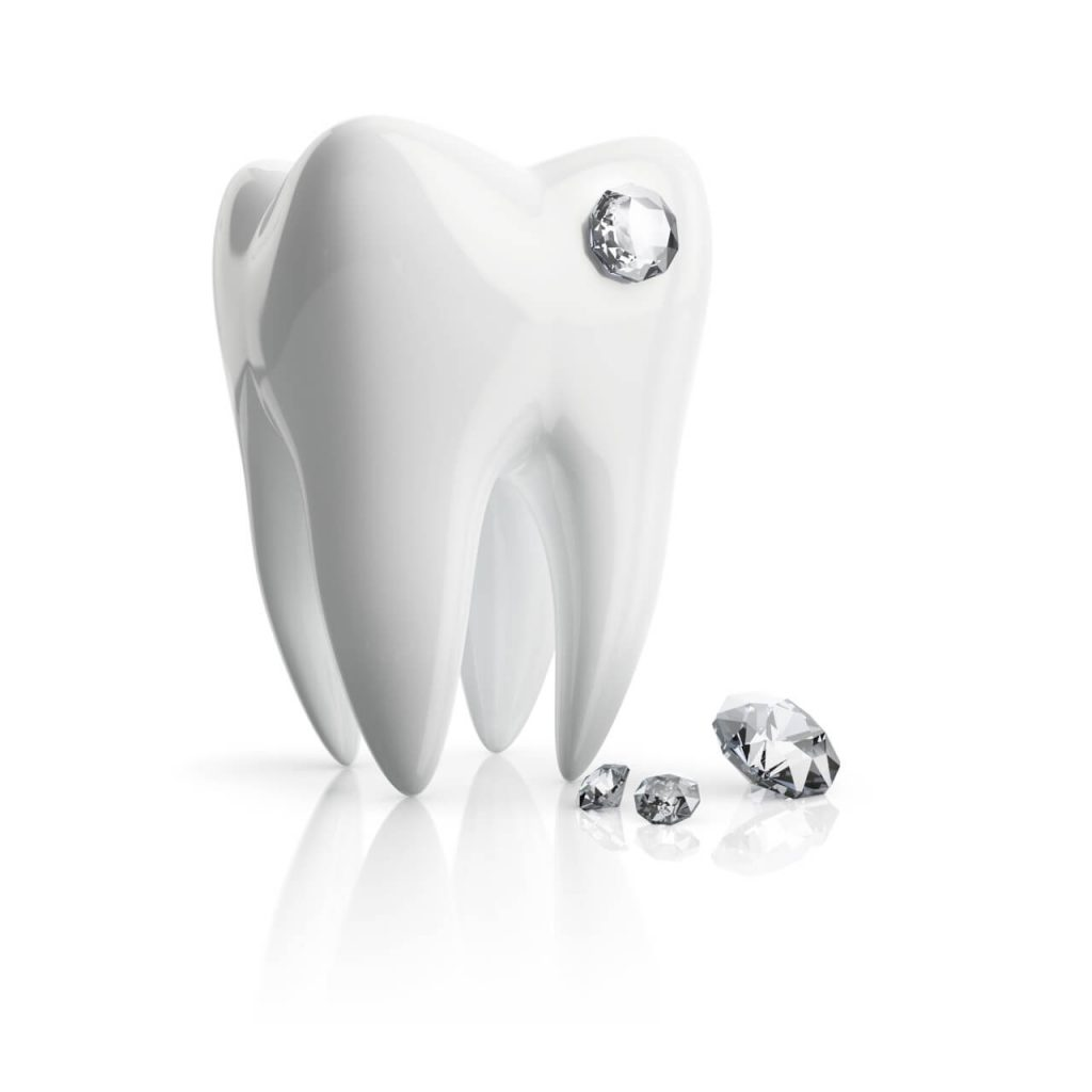 tooth diamond implant