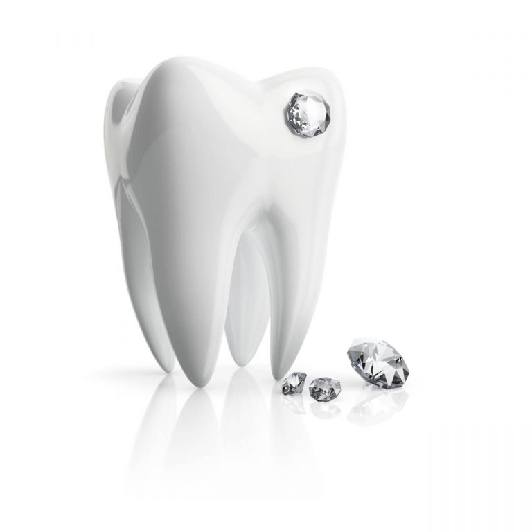 Tooth Diamond Implants