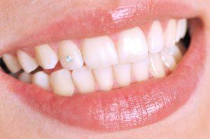 tooth diamond implant