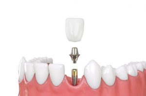 tooth extraction and implant timeline