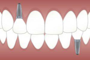 dental implant rejection symptoms