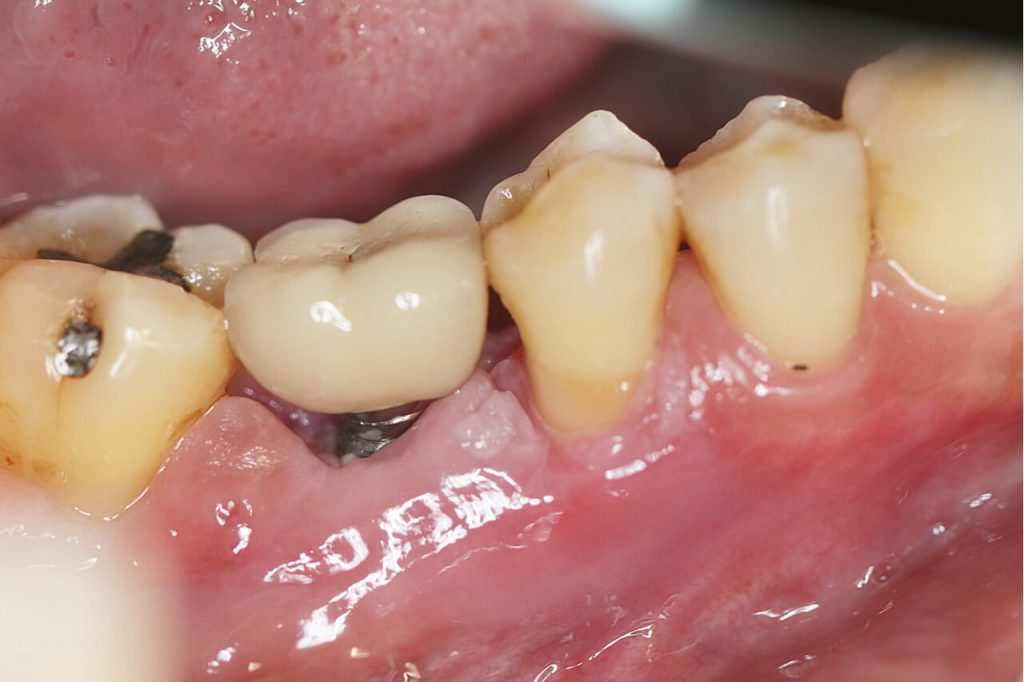dental implant infection signs