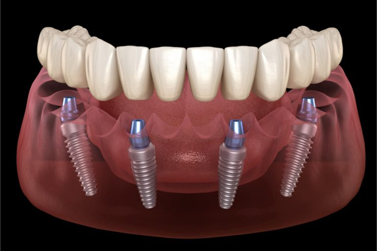 Common Mistakes to Avoid on an All-on-4 Dental Implant