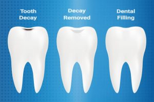 tooth filling procedure