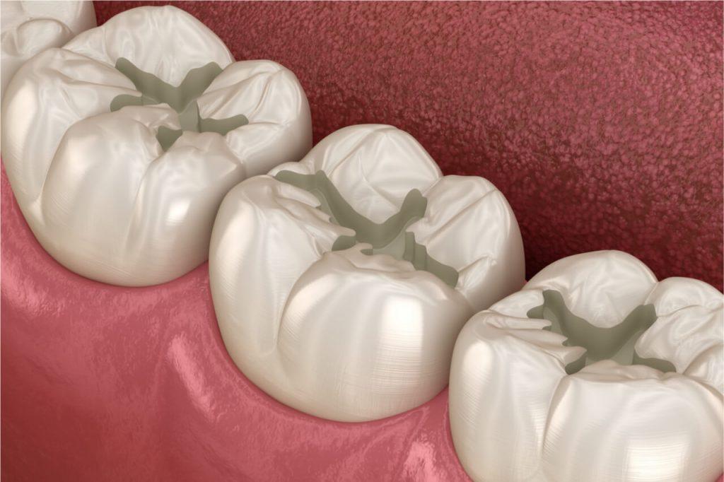 teeth need dental fillings