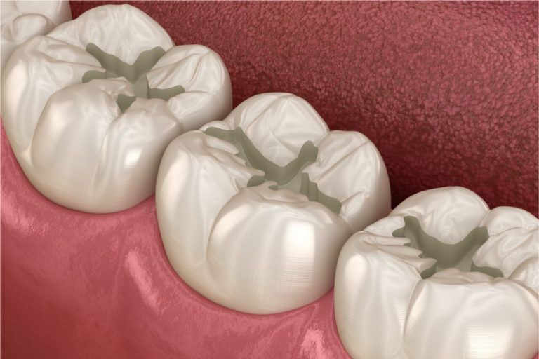 Lost Tooth Filling: Should You Panic After A Tooth Filling Falls Off?